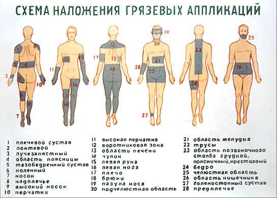 Пелоидотерапия