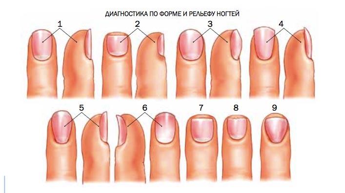 диагностика по ногтям пальцев рук