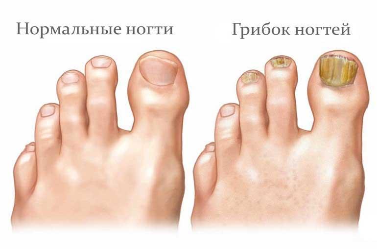 Как вылечить грибок ногтей уксусом рецепты
