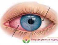 Миниатюра к статье Почему покраснел и болит глаз - основные причины патологии