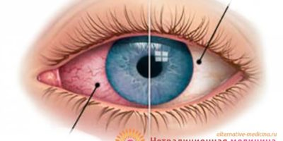 Миниатюра к статье Почему покраснел и болит глаз — основные причины патологии
