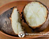 Миниатюра к статье Чем полезна печеная картошка и как ее правильно готовить?