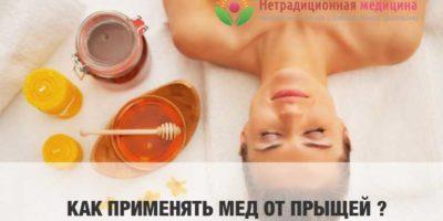 Миниатюра к статье Как применять мед от прыщей на лице —  эффективные  рецепты