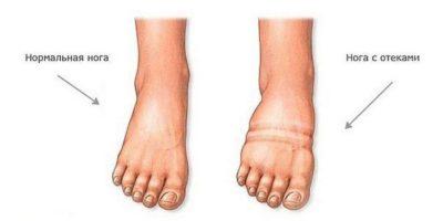 Миниатюра к статье Почему отекают ноги и чем это может быть опасно?