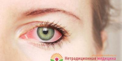 Миниатюра к статье Почему лопнул сосуд в глазу — все возможные причины и лечение