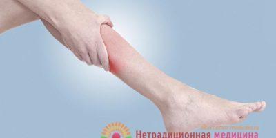 Миниатюра к статье Почему возникают судороги икроножных мышц и чем это может быть опасно?