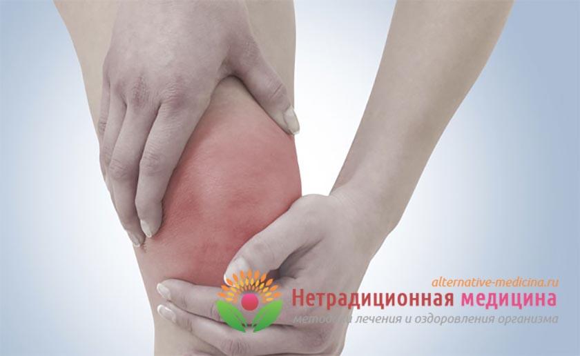 Изображение - Болит сустав колено что может быть Koleni