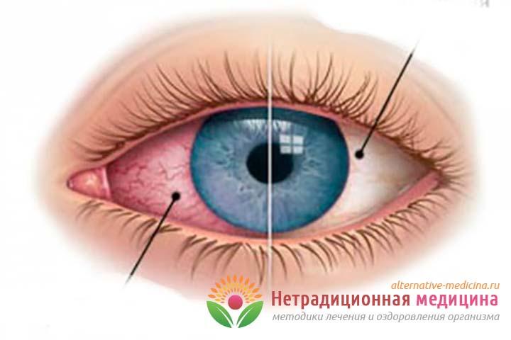 Глаз покраснел и болит - причины и правила лечения