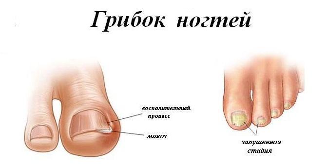 Где живет грибок ногтя