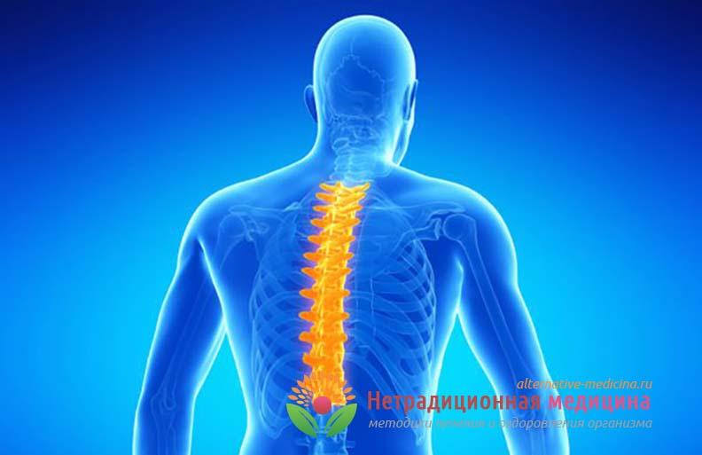 Болезнь остеохондроз - описание и лечение заболевания