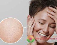 Миниатюра к статье Расширенные поры на лице - причины появления и способы их лечения