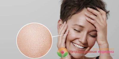 Миниатюра к статье Расширенные поры на лице – причины появления и способы их лечения