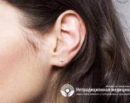 Миниатюра к статье Залысины на висках у женщин – причины появления, рекомендации по избавлению
