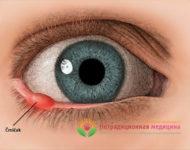 Миниатюра к статье Ячмень на глазу -  симптомы, причины, как вылечить быстро