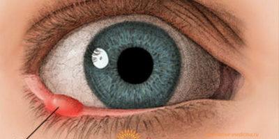 Миниатюра к статье Ячмень на глазу –  симптомы, причины, как вылечить быстро
