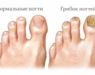 Миниатюра к статье Можно ли вылечить грибок ногтей с помощью обыкновенного столового уксуса?