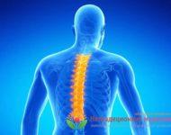 Миниатюра к статье Остеохондроз - причины возникновения, симптомы и способы лечения болезни