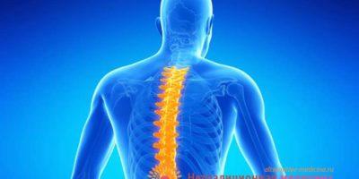 Миниатюра к статье Остеохондроз – причины возникновения, симптомы и способы лечения болезни