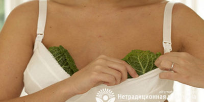 Миниатюра к статье Помогает ли капуста при лечении мастопатии?