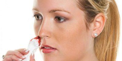 Миниатюра к статье Почему течёт кровь из носа и как с этим бороться?