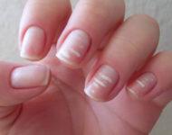 Миниатюра к статье Лейконихия или белые пятна на ногтях - что это такое?
