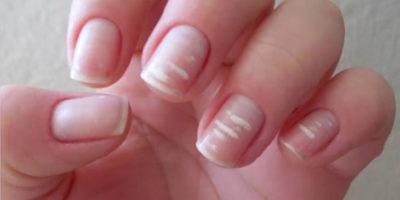 Миниатюра к статье Лейконихия или белые пятна на ногтях – что это такое?